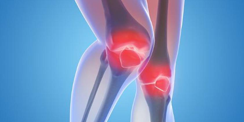 CBD Therapy for Arthritis