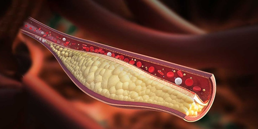 How Does CBD Oil Interact With Cholesterol Levels?