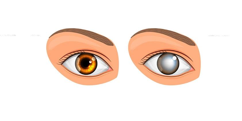CBD For Cataracts