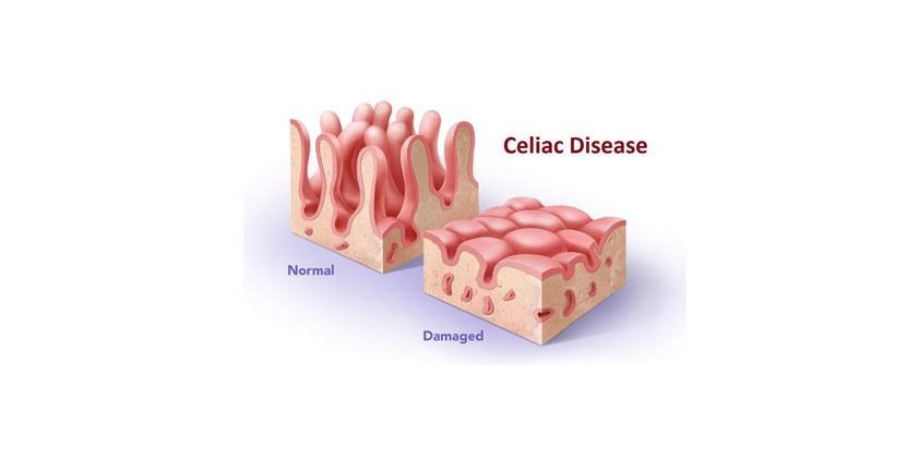 CBD For Celiac Immune Disorder