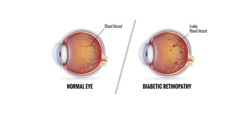 CBD For Diabetic Retinopathy