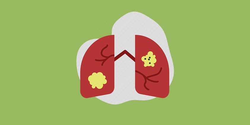 Does CBD Have the Potential To Help Fight Lung Cancer?