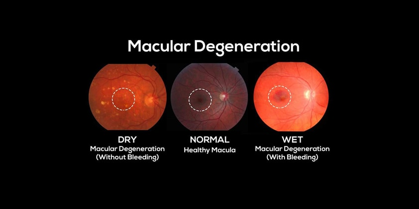 CBD For Macular Degeneration