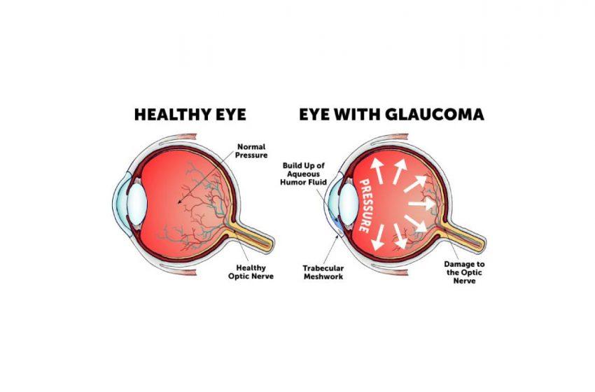 CBD For Glaucoma