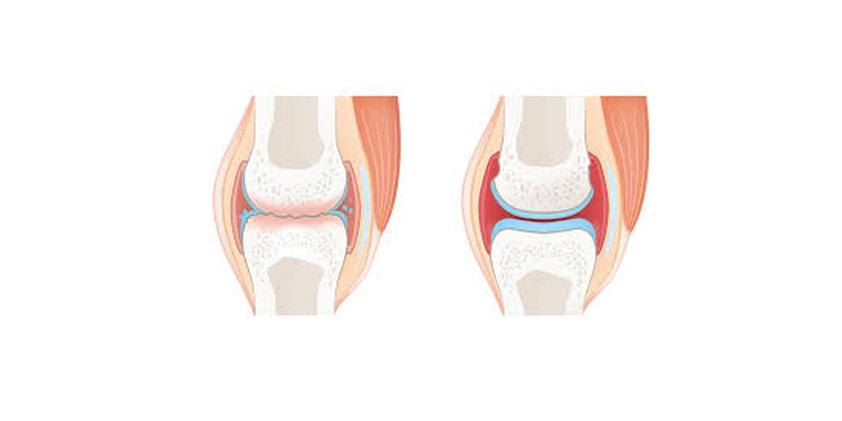 CBD as a Treatment for Osteoarthritis