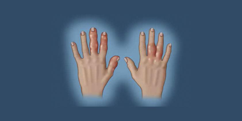 CBD as a Treatment for Rheumatoid Arthritis