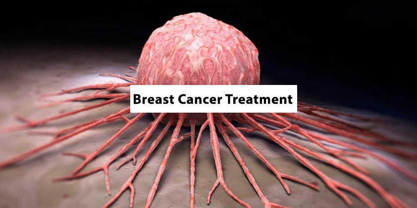 CBD Benefits for Breast Cancer Treatment