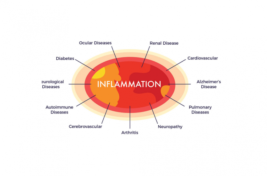 CBD Alleviates the Effects of Chronic Inflammation