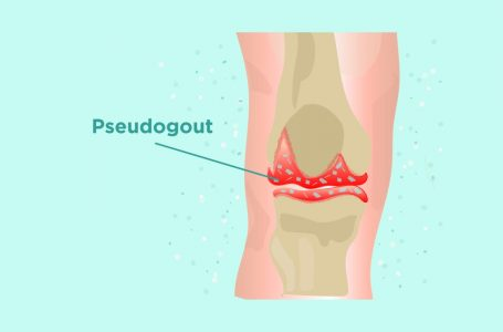 CBD for Pseudogout Relief