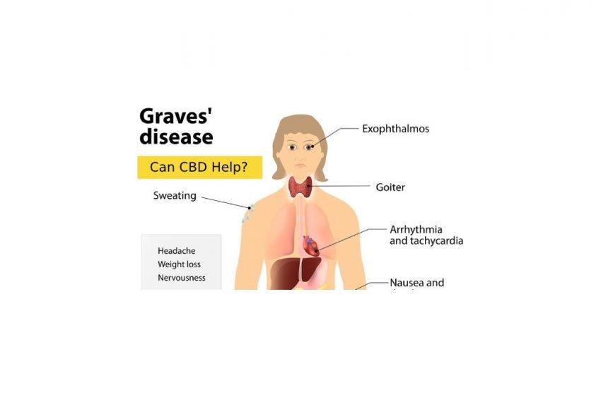 CBD for Graves Disease