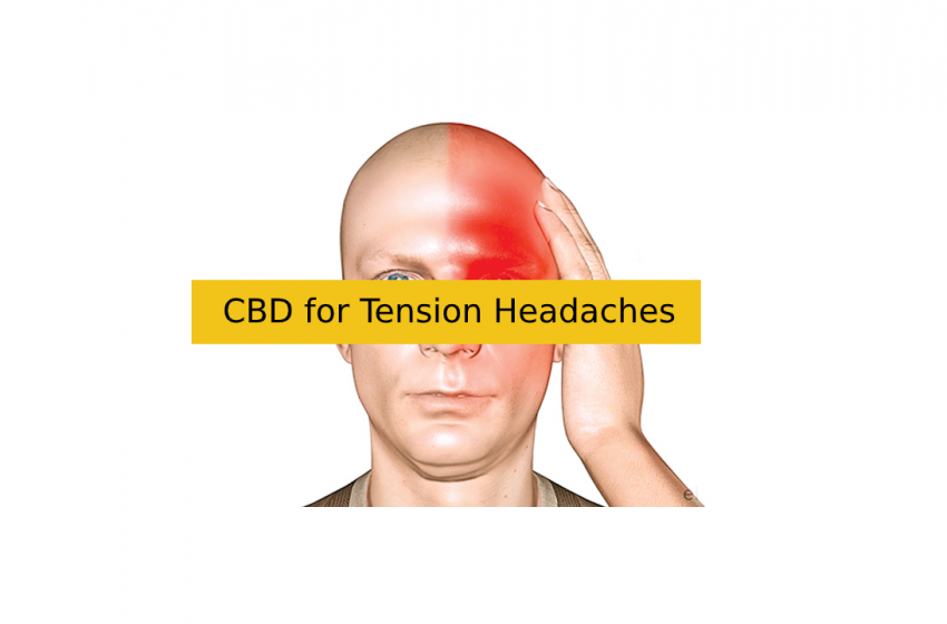 Is CBD Oil for Migraine Attacks Effective?